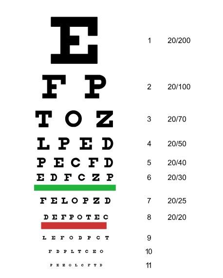 Okulistički pregled vida